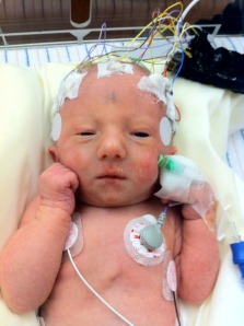 BK at Dell right after she was extubated with EEG still on
